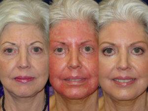 лазерная шлифовка лица от до и вовремя процедуры